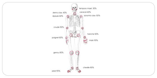 arthrite01