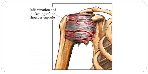 comment guerir une capsulite retractile