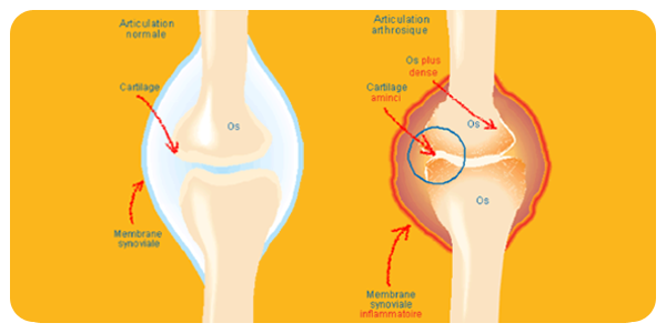 difference-arthrose-arthrite01