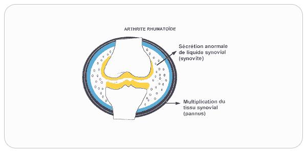 difference-arthrose-arthrite02