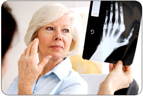 difference-arthrose-arthrite03