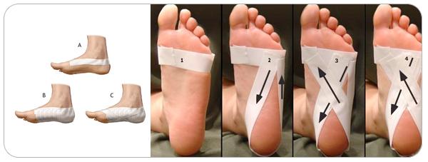 Le céleri pour le traitement de lépine dorsale