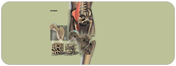 osteoporose01