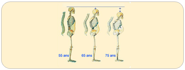 osteoporose02