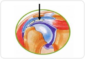 tendinite-epaule02